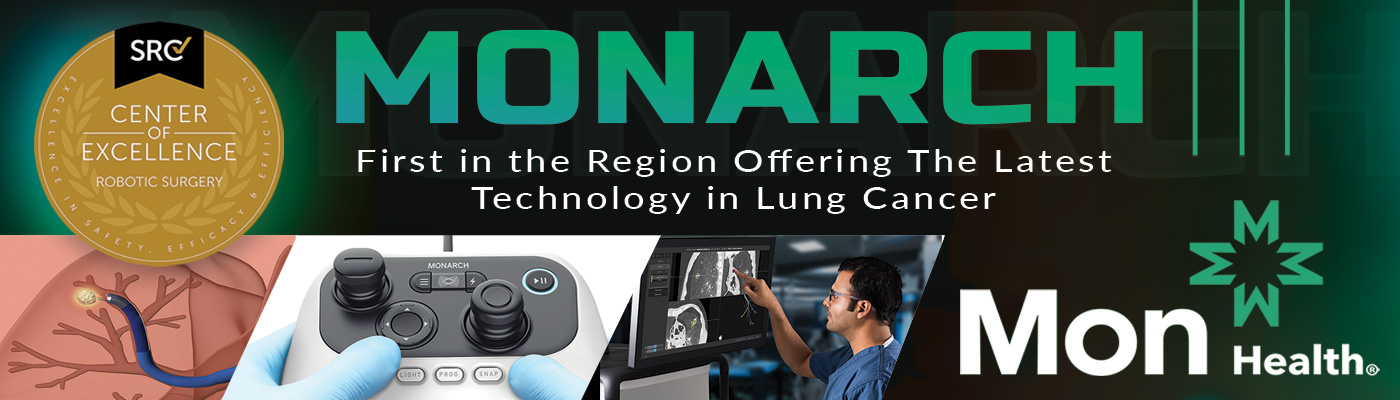 Monarch lung cancer technology